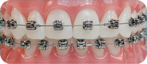 Damon Q braces