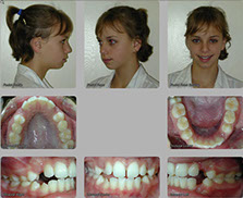 orthognathic surgery before