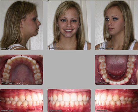 orthognathic surgery after