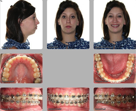 pre orthognathic surgery