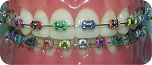 twin (stainless steel) braces